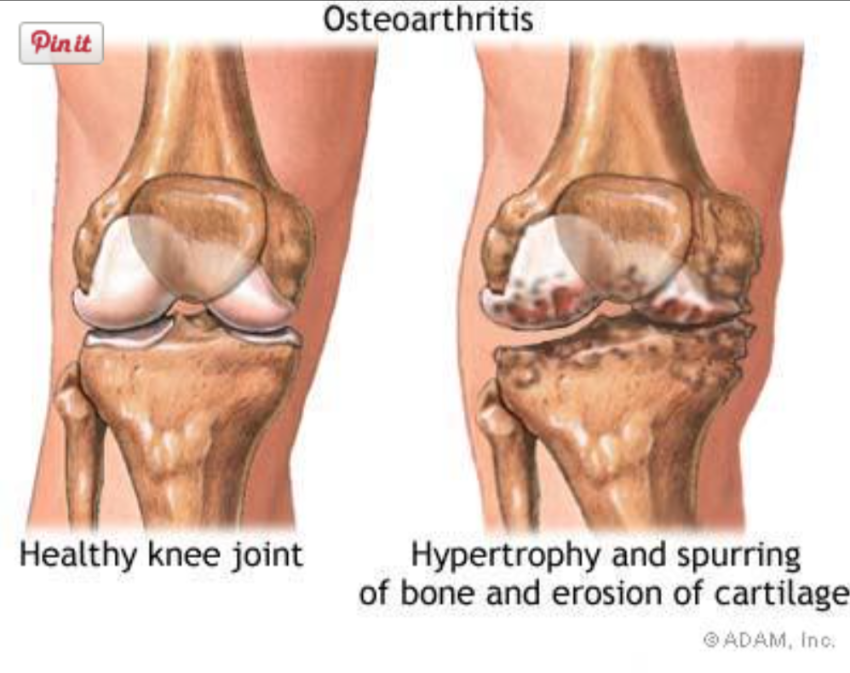 obesity and joint pain