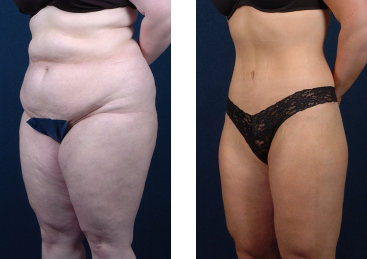 body contouring after weight loss copy