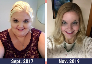 Nicky before and after massive weight loss