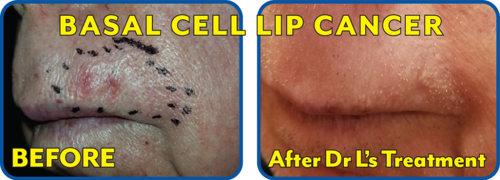 Basal Cell Lip Cancer