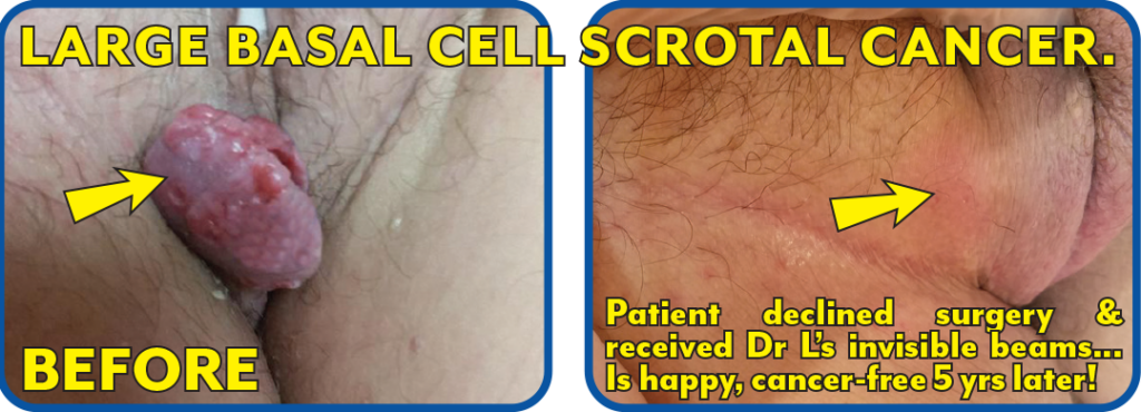 Basal Cell Scrotal Cancer