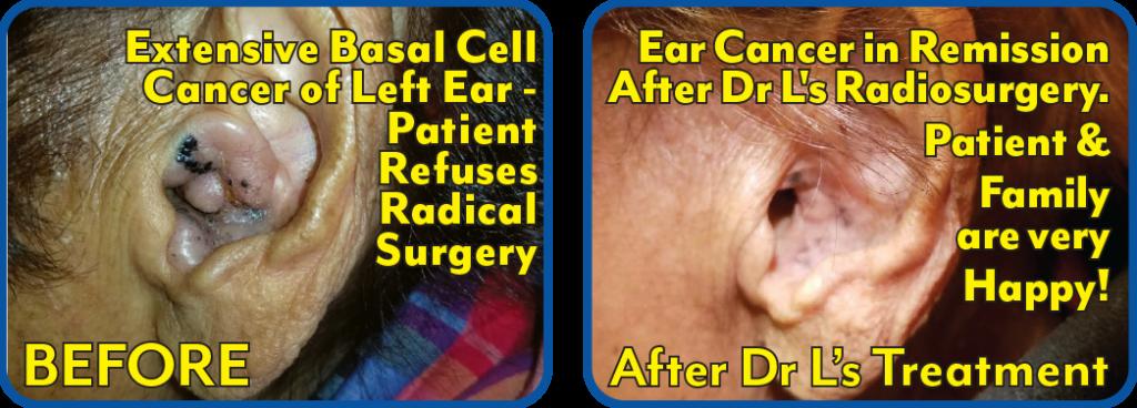 Ear Basal Cell Cancer