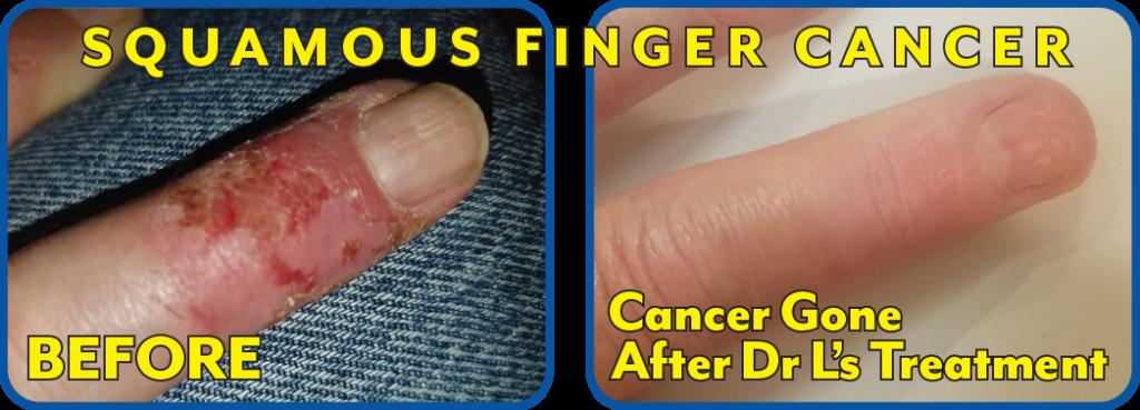 Squamous Finger Cancer