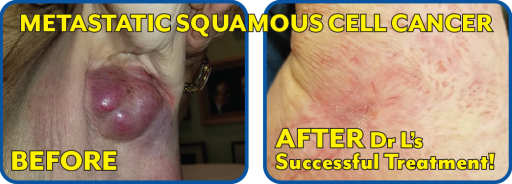 Metastatic Squamous Cell Cancer