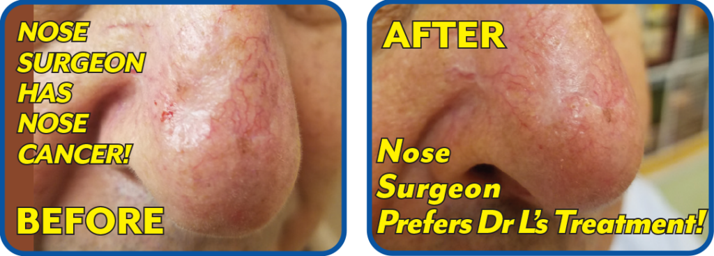 Nose Surgeon Gets Nose Cancer
