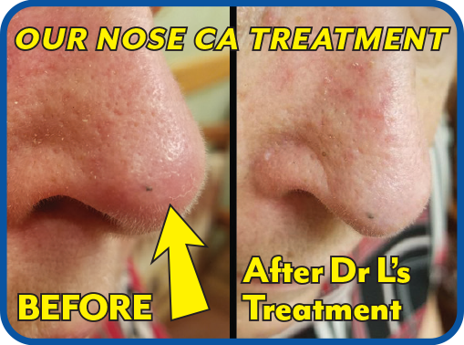 Learned all options with Dr L. Chose invisible beams to attack her cancer. Excellent medical & cosmetic results!