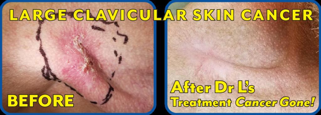 Large Clavicular Skin Cancer