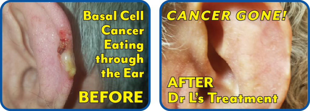 Squamous Ear Cancer