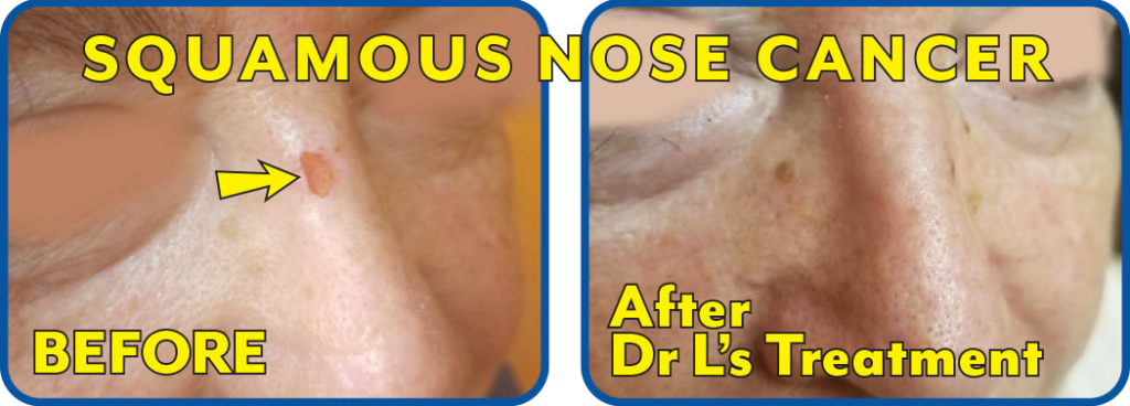 Squamous Nose Cancer