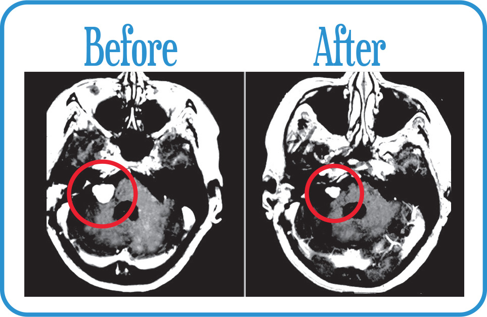 Acoustic Neuroma in remission 9 years after our Fractionated Radiosurgery.