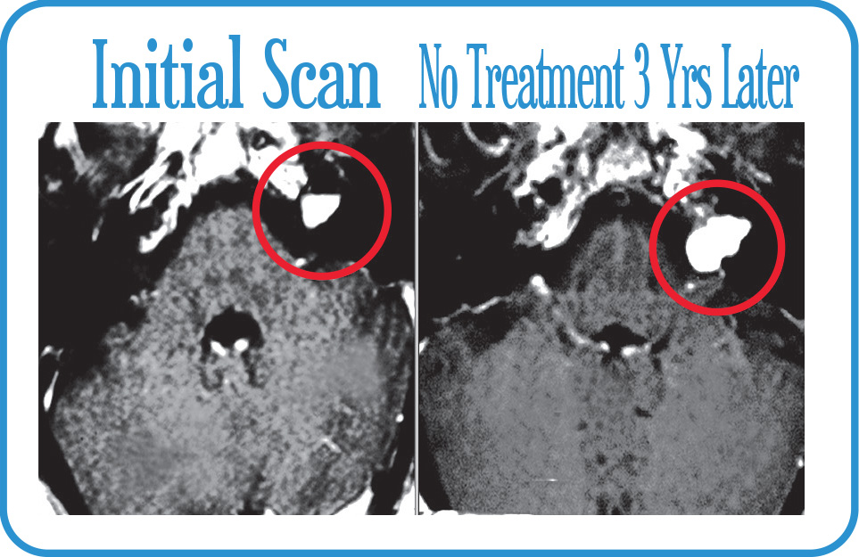 Diagnosed with AN but refusing treatment, scans show growth over 3 years.