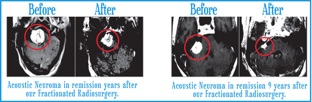 Acoustic Neuromas Before After 1