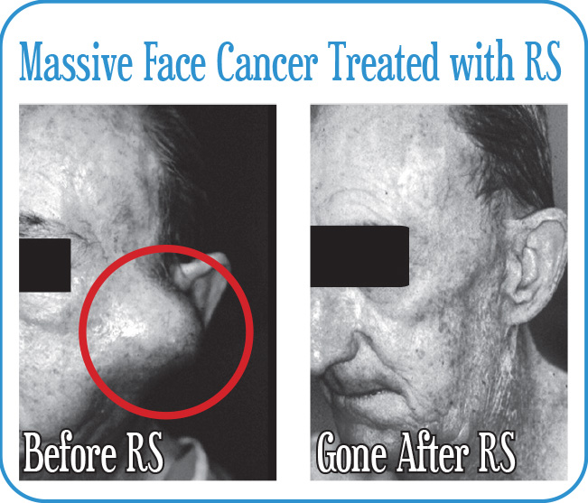 Massive Face Cancer Treated with RS