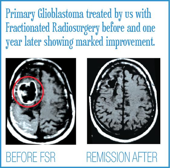 Primary Glioblastoma