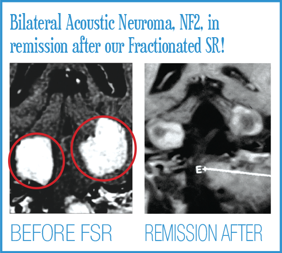 Bilateral Acoustic Neuroma