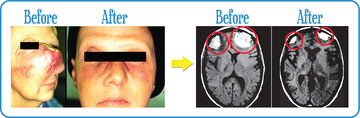 Massive Esthesioneuroblastoma in remission after our Fractionated Radiosurgery.