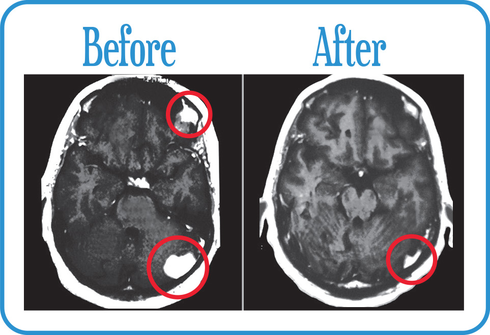 Multifocal Brain Metastases in remission after our Fractionated Radiosurgery.