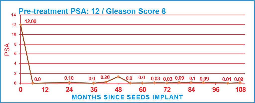 Pre-treatment PSA: 12 / Gleason Score 8