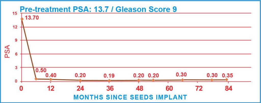 Pre-treatment PSA: 13.7 / Gleason Score 9