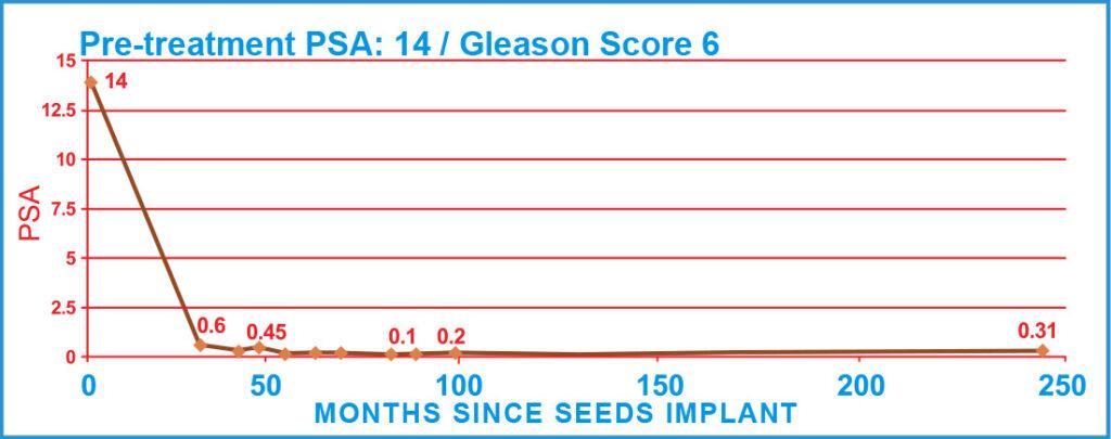 Pre-treatment PSA: 14 / Gleason Score 6