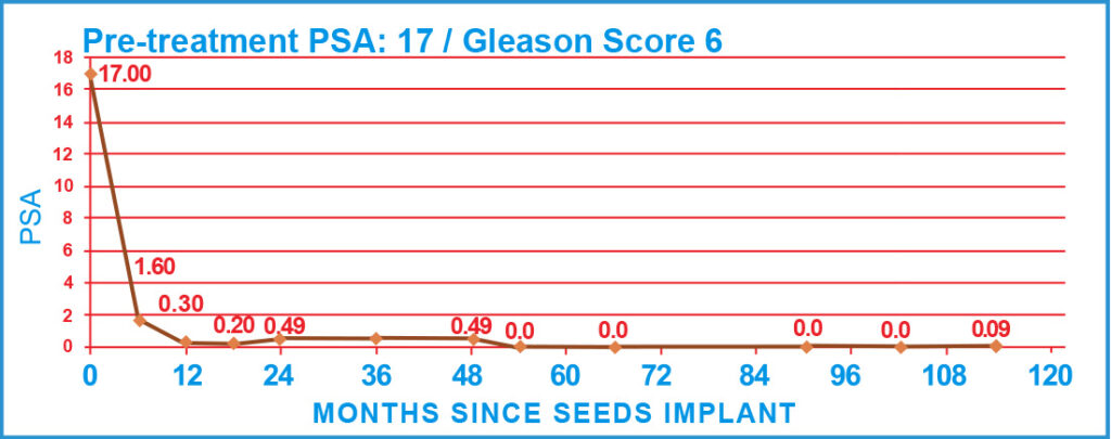 Pre-treatment PSA: 17 / Gleason Score 6