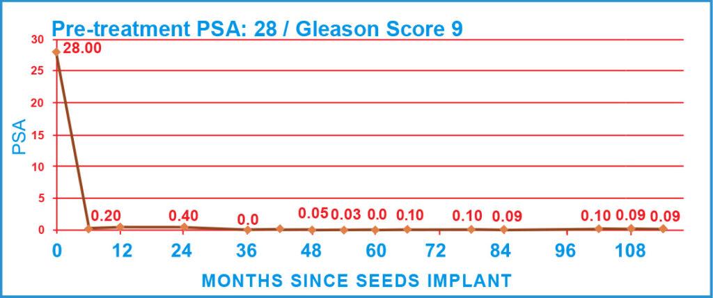 Pre-treatment PSA: 28 / Gleason Score 9