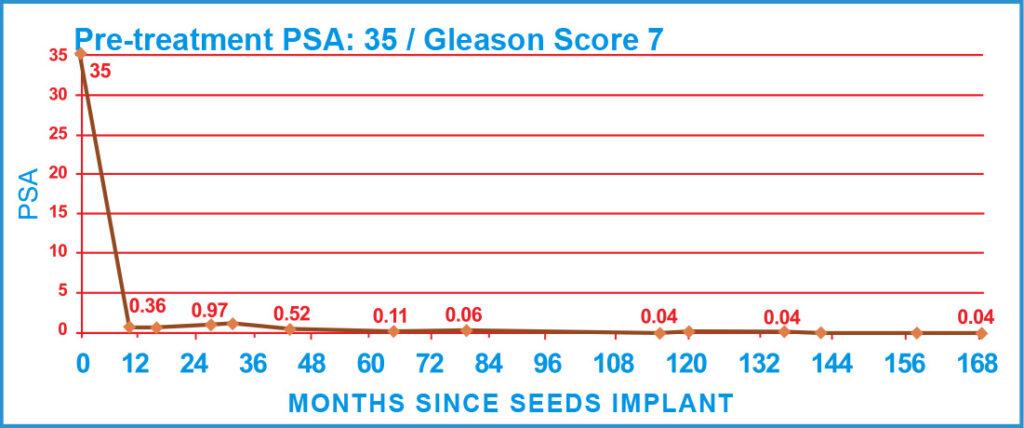 Pre-treatment PSA: 35 / Gleason Score 7