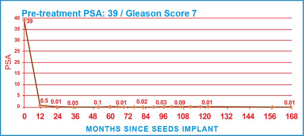 Pre-treatment PSA: 39 / Gleason Score 7