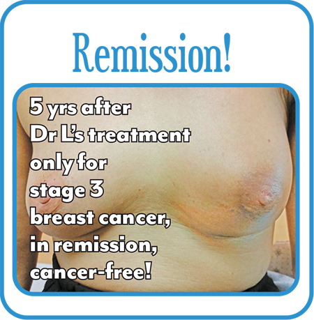 Breast-Cancer-Gallery-15