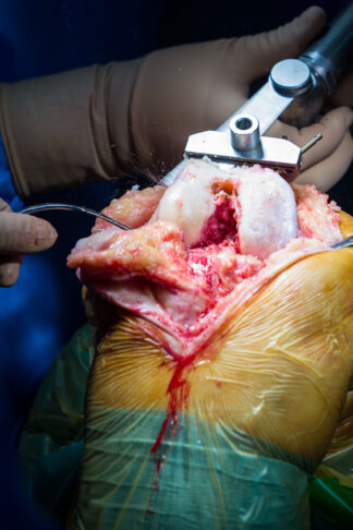 Knee Surgery Scaled