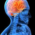 brainskeleton