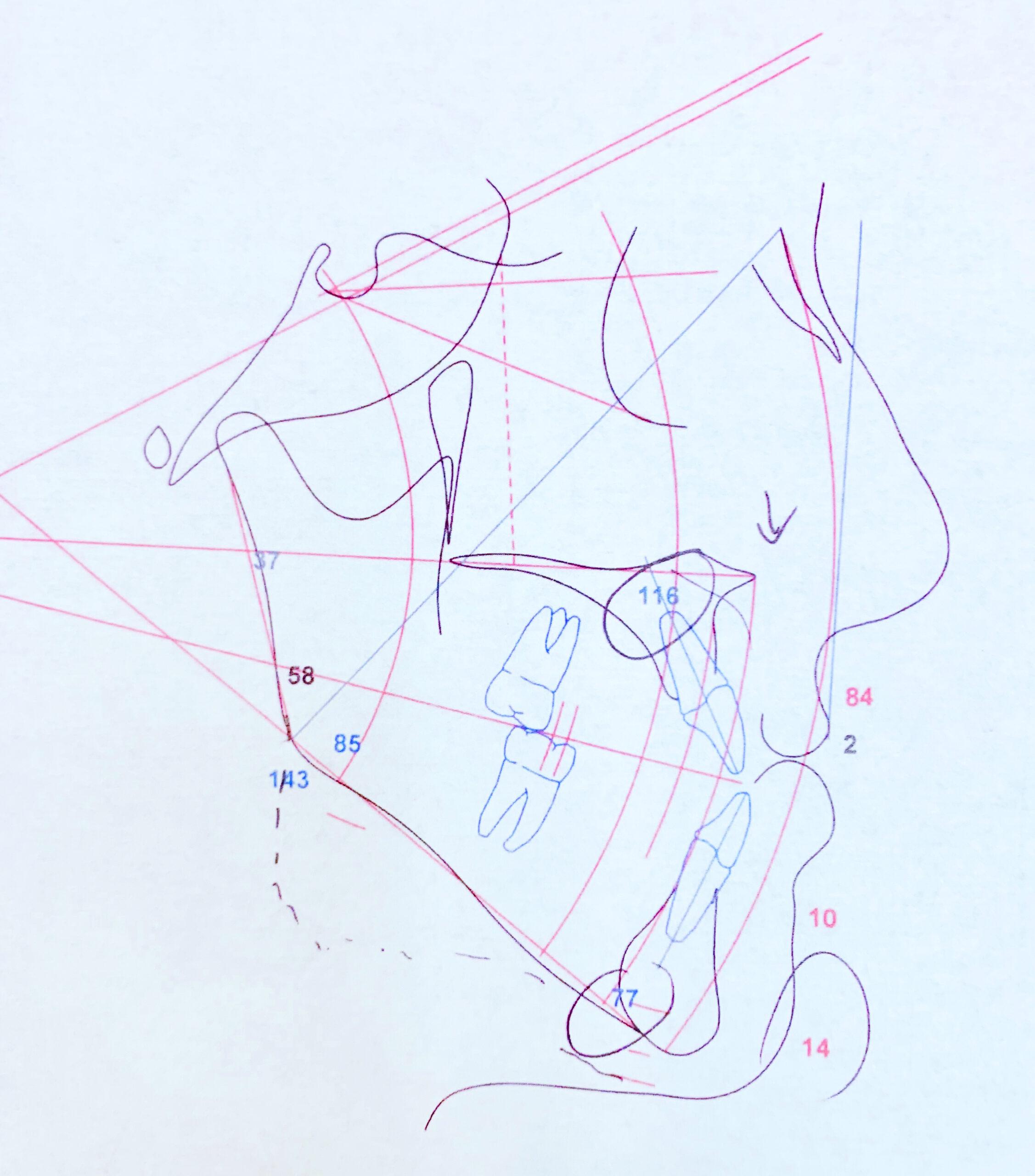celph analysis