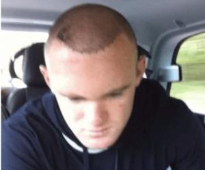 Wayne Rooneys hair is balding- sinzuuliveblog