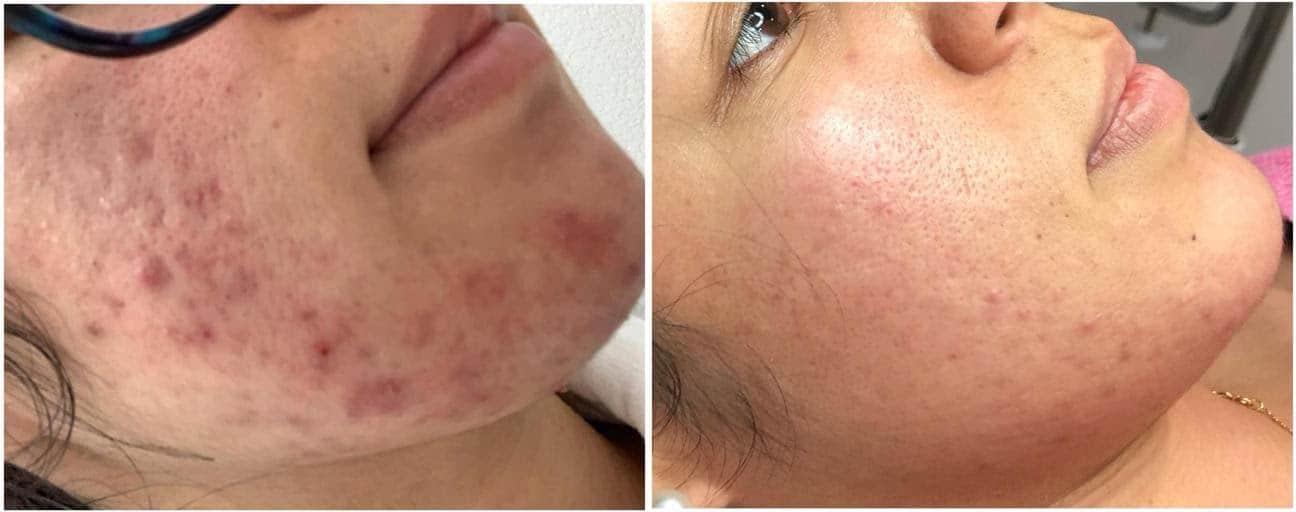 El problema del acné y las mascarillas contra el Covid-19
