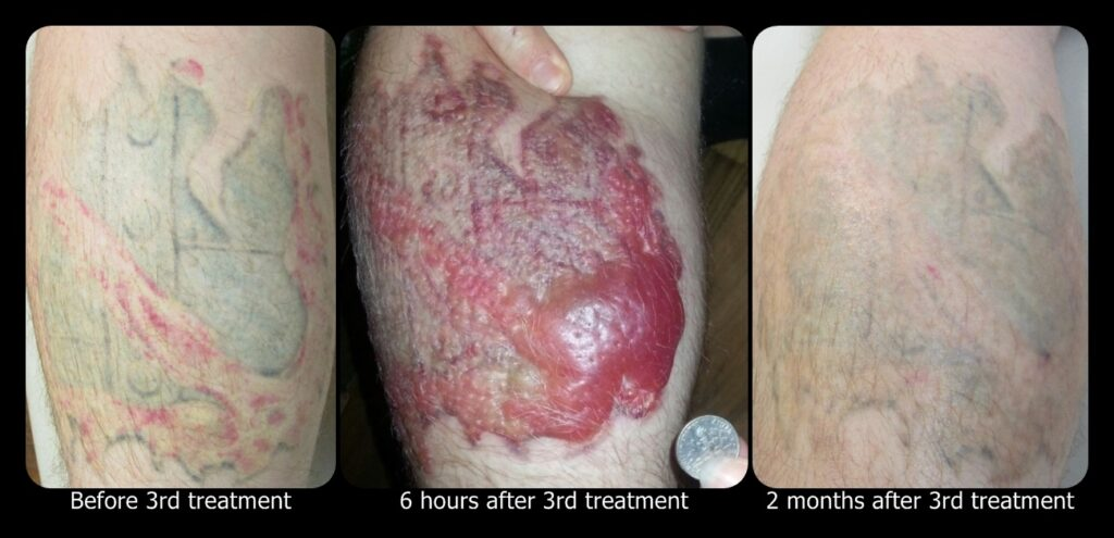 Photos of Blisters after Tattoo Removal