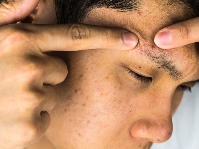 3 Tips on How to Treat Adult Acne