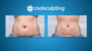 coolsculpting-before-after-total-med-solutions