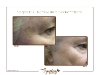 Skin tightening around eyes