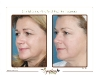 Facial skin-tightening
