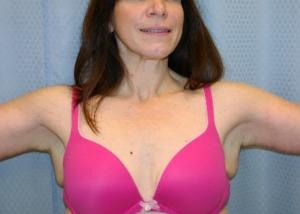 brachioplasty-arm-lift-beverly-hills-woman-after-front-dr-maan-kattash