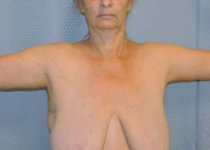 brachioplasty-arm-lift-sagging-arm-skin-beverly-hills-woman-after-front-dr-maan-kattash