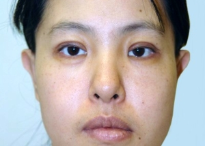 otoplasty-prominent-ear-surgery-pinning-correction-beverly-hills-woman-after-front-dr-maan-kattash