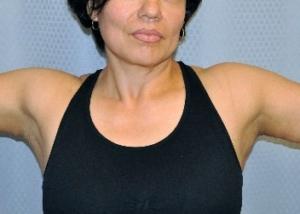 brachioplasty-arm-lift-surgery-loose-floppy-skin-beverly-hills-woman-after-front-dr-maan-kattash