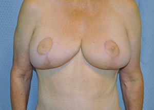 breast-lift-plastic-surgery-irvine-upland-woman-after-front-dr-maan-kattash