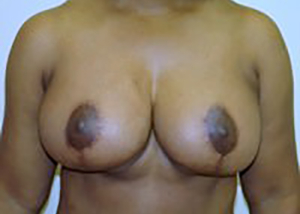 breast-lift-plastic-surgery-mastopexy-beverly-hills-woman-after-front-dr-maan-kattash