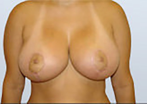 breast-lift-plastic-surgery-mastopexy-rancho-cucamonga-woman-after-front-dr-maan-kattash