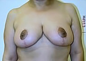 breast-reduction-plastic-surgery-beverly-hills-woman-after-front-dr-maan-kattash