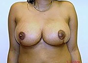 breast-reduction-plastic-surgery-los-angeles-woman-after-front-dr-maan-kattash-2