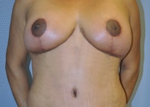 breast-reduction-plastic-surgery-rancho-cucamonga-woman-after-front-dr-maan-kattash