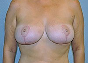 breast-reduction-plastic-surgery-upland-woman-after-front-dr-maan-kattash